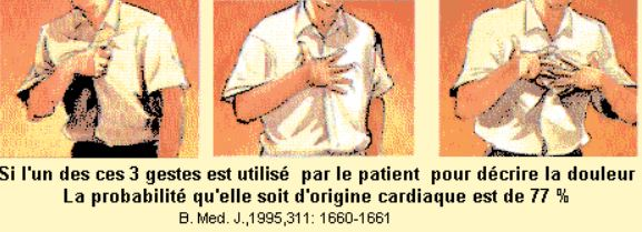 gestes infarctus